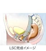 LSC手術